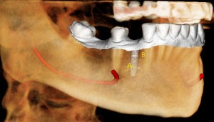 CBCT Evaluation for Implant Dentistry